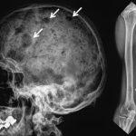 Mielom multiplu – Simptome, Diagnostic, prognosticul si tratamentul