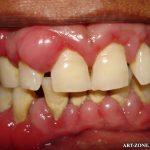 Simptome parodontita juvenila